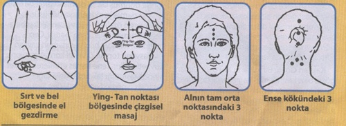 Akupunktur Nedir